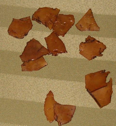 These are some of the pieces they took out of my tummy
